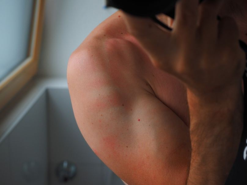 person with a sunburned skin